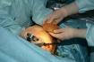 Валерий Стайсупов. Подготовка имплантата