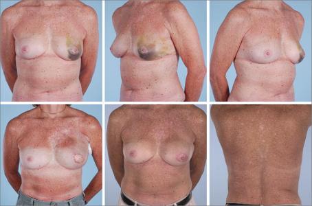 Поставить грудные импланты стоимость