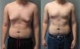 Результат операции по устранению гинекомастии