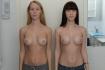 Сравнение результатов маммопластики