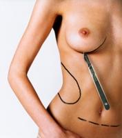 simultannie operacii