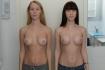 Увеличение груди у близнецов. Хирург - Валерий Стайсупов