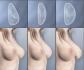 Результаты увеличения груди различными имплантатами