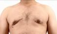 После устранения гинекомастии у Раеда возникли осложнения в виде грубых рубцов