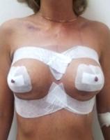 posle mammoplastiki