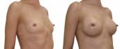 «До» и «После» увеличения груди пациентки с пересаженной печенью. Хирург - Тагир Файзуллин