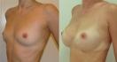 Увеличение груди от Тагира Файзуллина