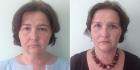 Светлана Пшонкина. Фото пациентки до и после подтяжки лица