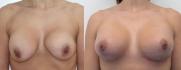 Повторная маммопластика в DoctorPlastic