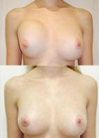 povtornaja mammoplastika