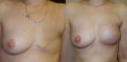 Реконструкция груди после радикальной мастэктомии. Хирург - Светлана Гагарина