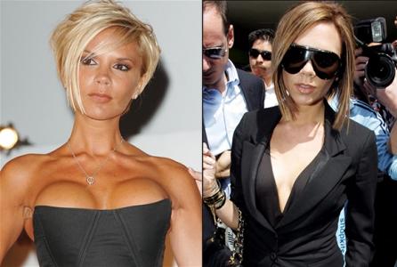 импланты грудные фото до и после фото