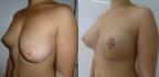 Результат устранения асимметрии груди спустя 1 месяц после операции