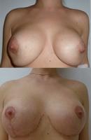 neudachnaja mammoplastika