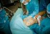Введение жировой ткани в область молочной железы