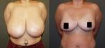До и после редукционной маммопластики