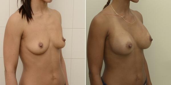 Фото до и после увеличения груди у Валерия Стайсупова