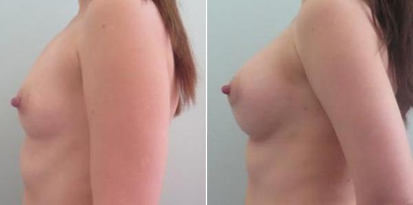 Фото до и после увеличения груди у Али Алиева