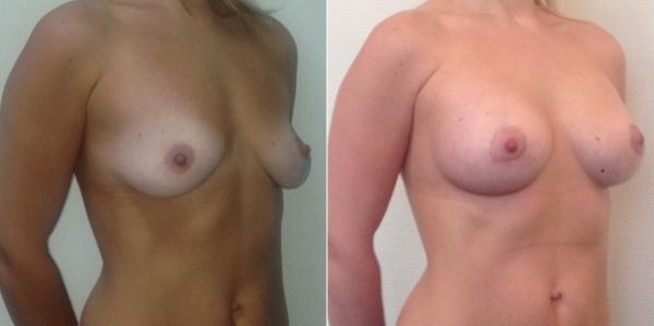 Фото до и после увеличения груди у Светланы Пшонкиной