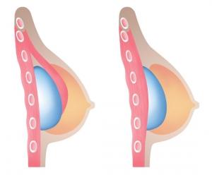 Способы установки имплантата