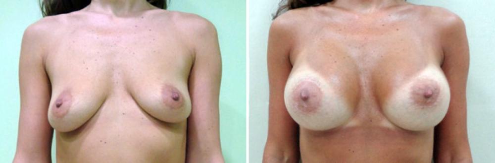 Фото до и после маммопластики у Владимира Косинца