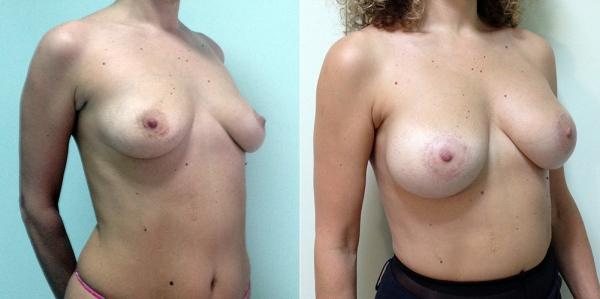 Фото пациентки до и после подтяжки и увеличения груди у Светланы Пшонкиной