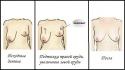 Коррекция асимметрии груди при помощи имплантатов
