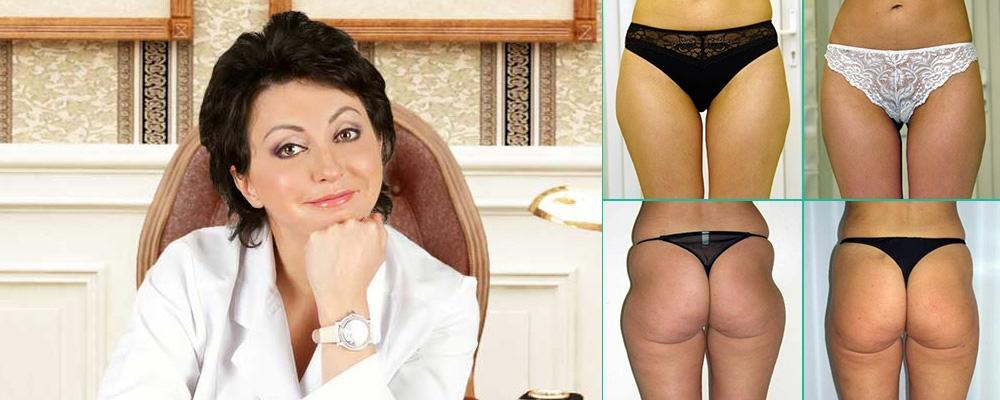 Татьяна Иванченкова лучший хирург по липосакции