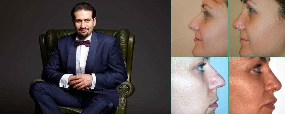 Соломон Абрамян микроринопластика лучший хирург