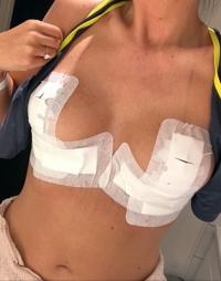 Уменьшение груди реабилитация