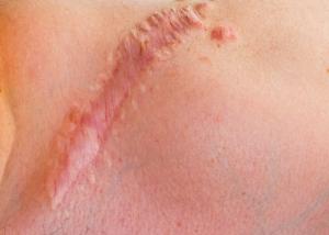 Келоидный шрам после увеличения груди