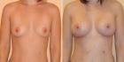 Фотографии до и после увеличения груди у Дмитрия Рябцева