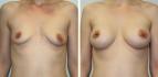 Фото до и после подтяжки груди у доктора Дениса Баги