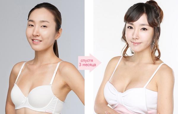 Увеличение груди имплантами анатомической формы в виде капли