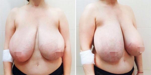 Уменьшение груди Рустем Каримов
