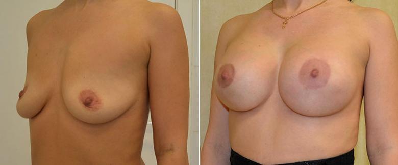 Подтяжка груди на имплантах