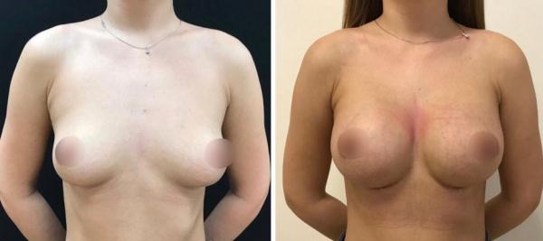 Фархат Мамедов увеличение груди