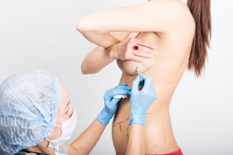 Как правильно подготовиться к подтяжке груди