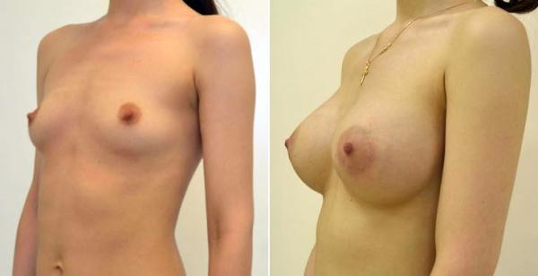 увеличение груди и беременность