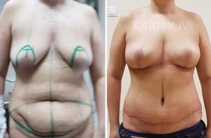 Рустем Каримов увеличение груди и абдоминопластика