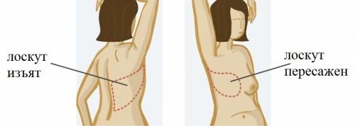 Один из вариантов реконструкции груди собственными тканями пациентки