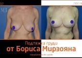 Кому доверить пластику груди в Москве? Европейский опыт, безупречная репутация. Пластический хирург Борис Мирзоян.