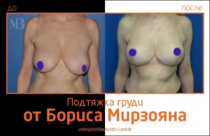 Увеличение груди Борис Мирзоян