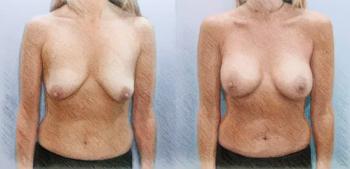 Импланты среднего профиля