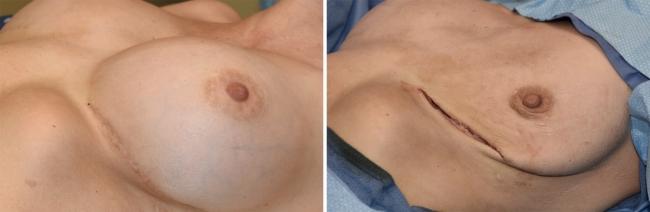 До и после удаления импланта из груди