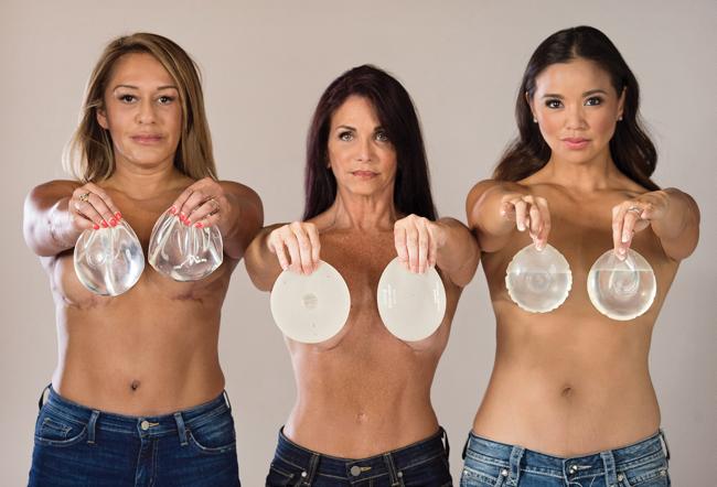 Удаление имплантов из груди