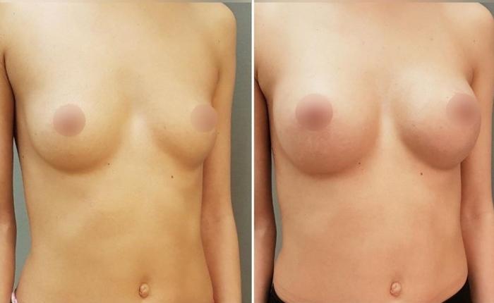Фото до и после увеличения груди у доктора Екимова