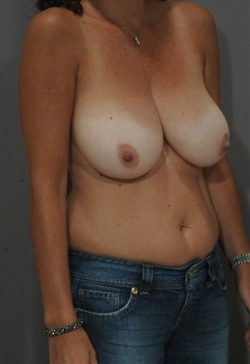 Птоз груди операция