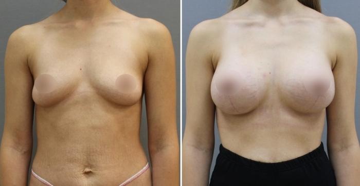Пациентка доктора Станислава Екимова до и после увеличивающей маммопластики