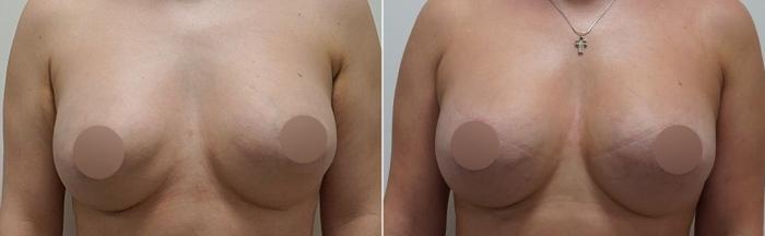 липолфилинг после удаления имплантов